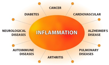 inflammation-cryotherapy
